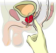 rak-na-prostatata