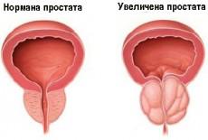 uvelichena-prostata