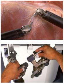 Роботът филтрира движенията на уролога