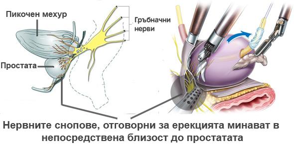 Съхранение на нервните снопове при операция за рак на простатата