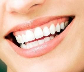 Избелване на зъбите